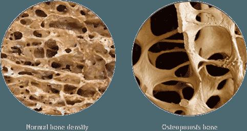 0104-osteoporosis-rebuild-bone-density-bellicon